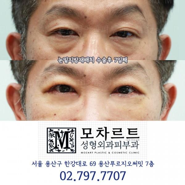 눈밑지방재배치 + 쳐진눈매교정