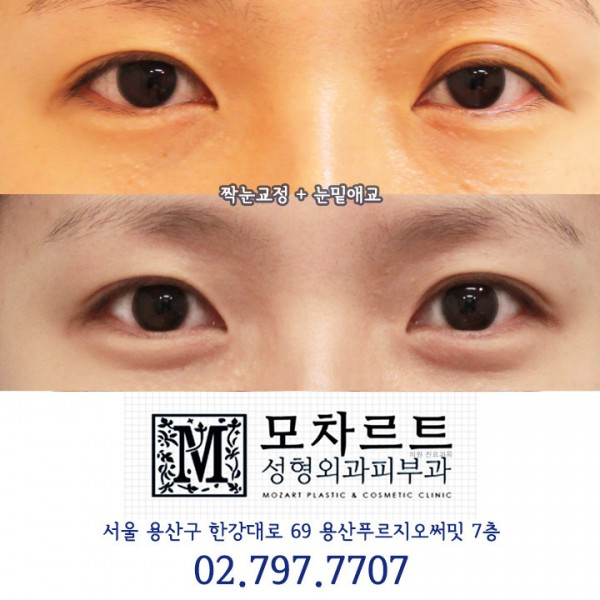 짝눈교정매몰법 +눈밑애교