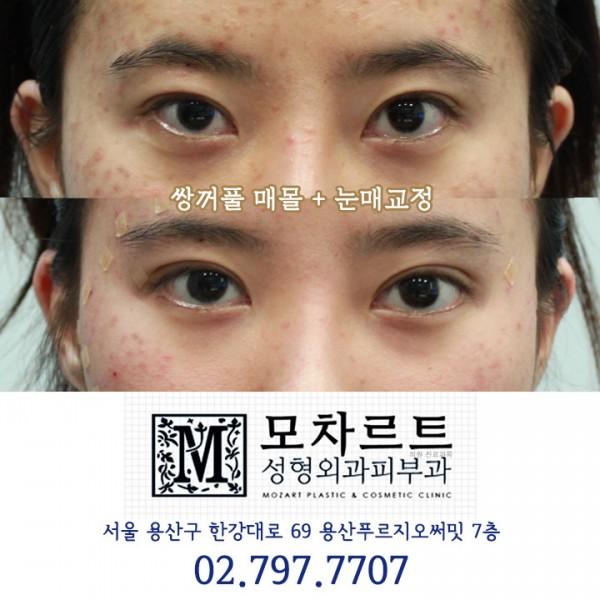 쌍꺼풀 매몰 + 눈매교정