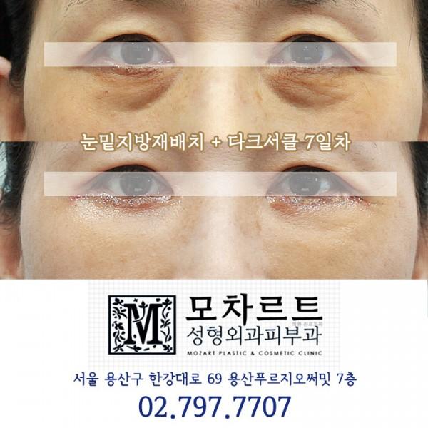 눈밑지방재배치 + 다크서클교정 7일차