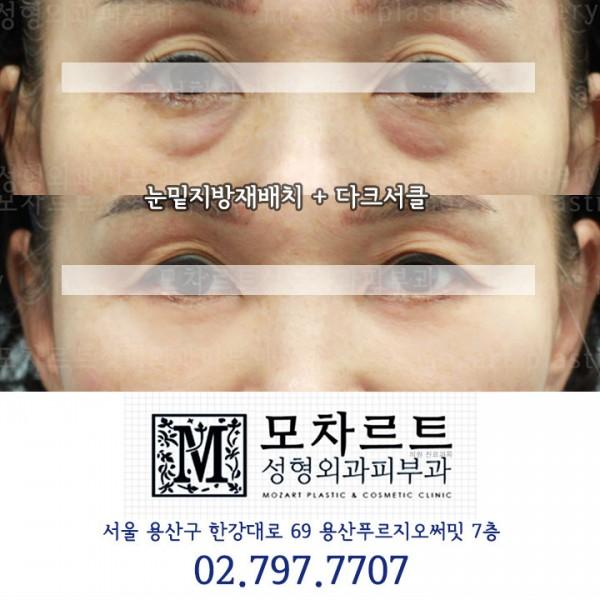 눈밑지방재배치 +다크서클교정
