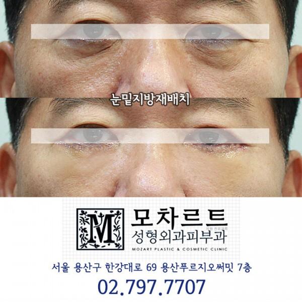 눈밑지방재배치 + 다크서클교정