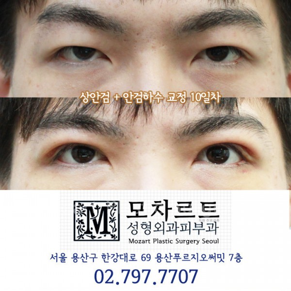 상안검+안검하수교정