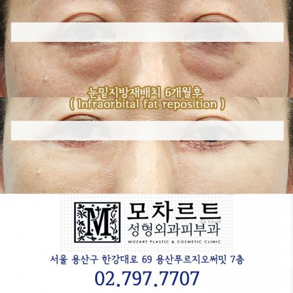 눈밑지방재배치+눈밑주름교정
