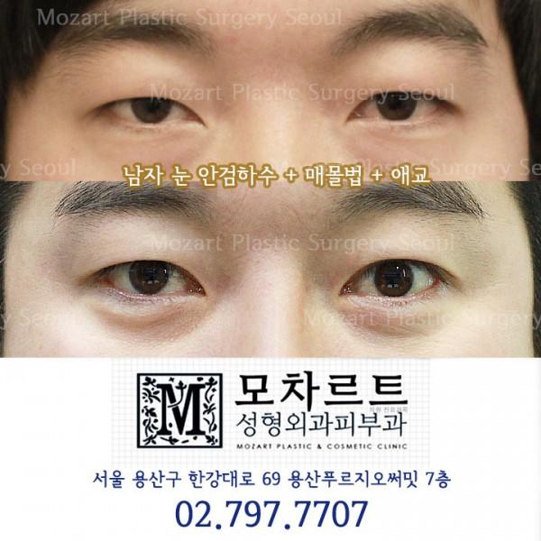 쌍꺼풀매몰법+안검하수교정