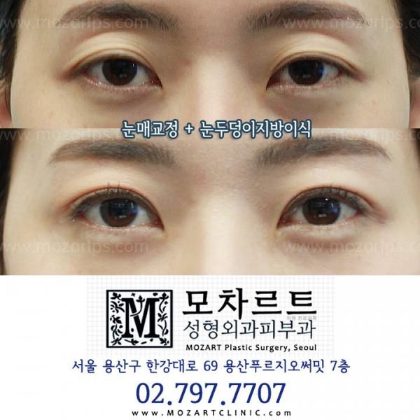 눈매교정 + 눈두덩이지방이식