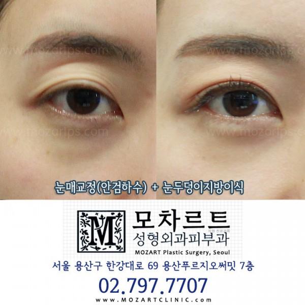 눈매교정(안검하수) + 눈두덩이 자가지방이식